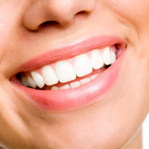 Bright, White Teeth can achieved by teeth whitening