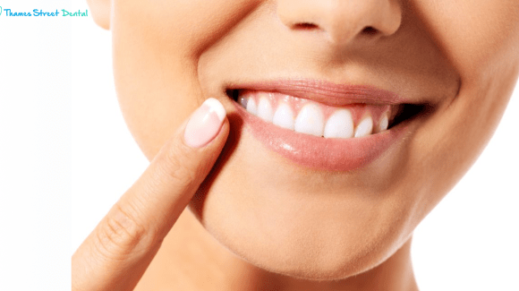 Pointing to Straight teeth