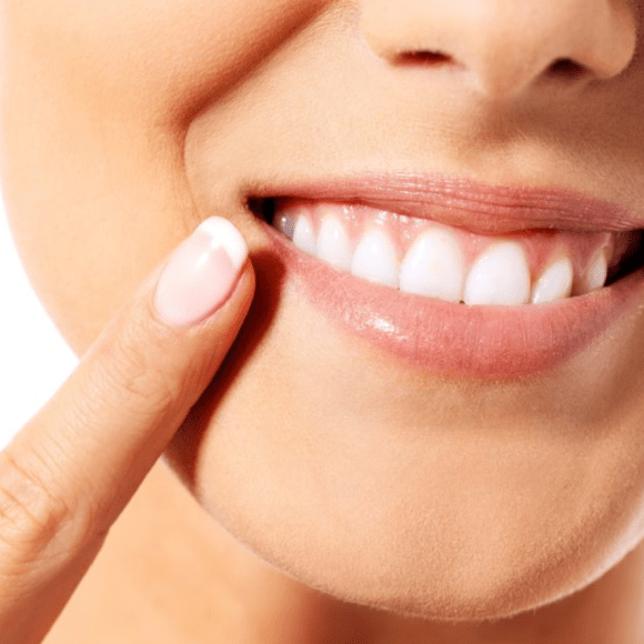 The Dangers of Straightening Your Teeth at Home