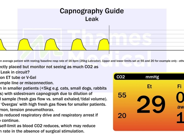 maxresdefault 12 1 1 640x480 c - The Capnography Resource Centre