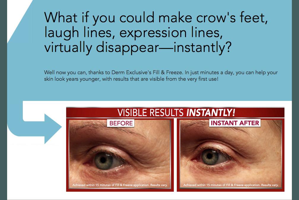 Derm Wrinkle Reducer