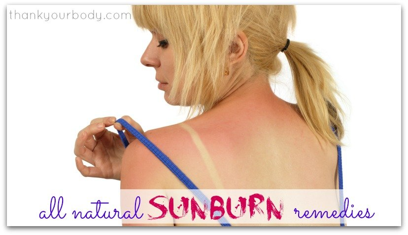 Natural Sunburn Remedies (You know, just in case)