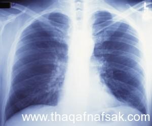 الوقاية من السرطان 15 ثقف نفسك 300x248 20 طريقة بسيطة للوقاية من السرطان