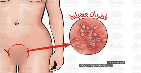 فطريات المهبل أسبابها وعلاجها لتمنعي الحكة المهبلية والأحمرار