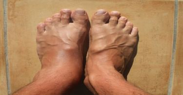 علاج تورم القدمين عند الرجال بالأعشاب الطبيعية
