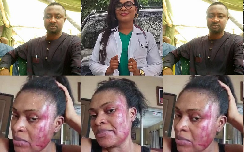 Medical doctor beaten mercilessly by her Husband, just four weeks after she welcomed their fourth child