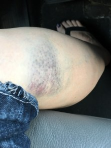 bruise on leg from bite