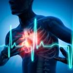 Personal Fitness or Cardiac Rehab