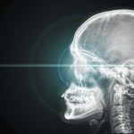 The Hidden Effects of Head Injuries