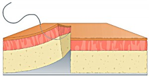 How to Tie a Figure 8 Suture