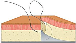 Figure of 8 step 4
