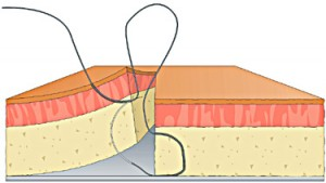 Figure of 8 step 5