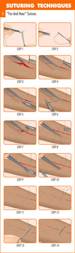 far_and_near_suture_technique