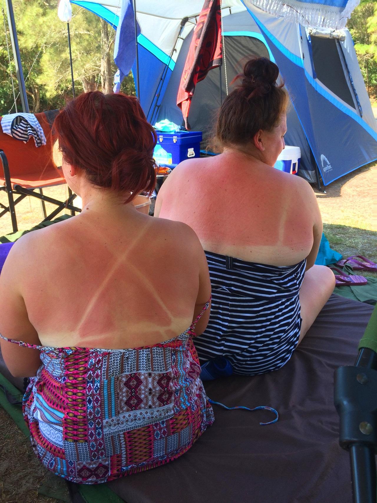 Girls sunburnt