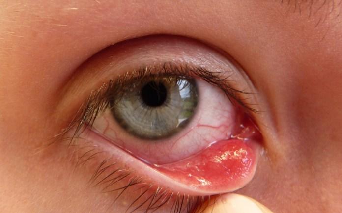 Stye-in-eye