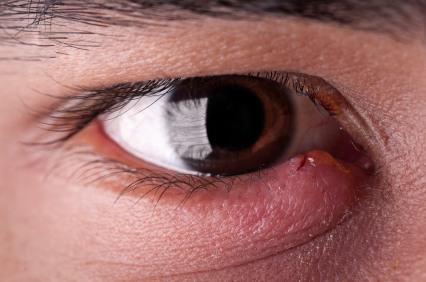 Stye-on-lower-eyelid