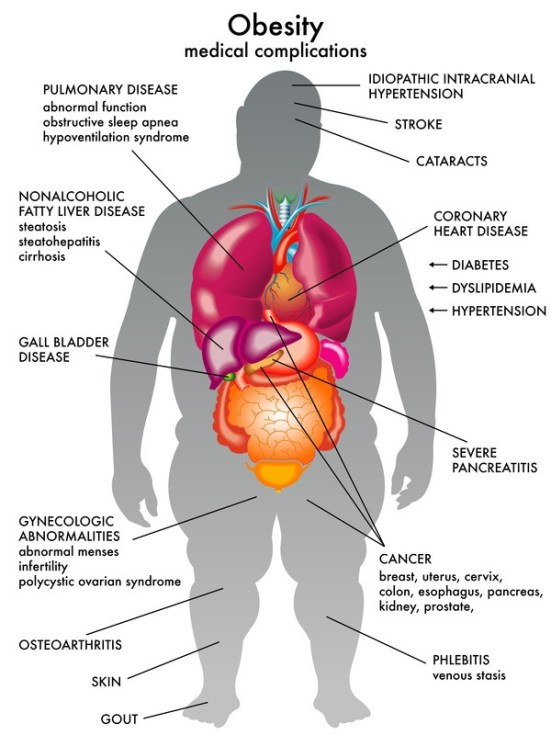 Complication related to Obesity