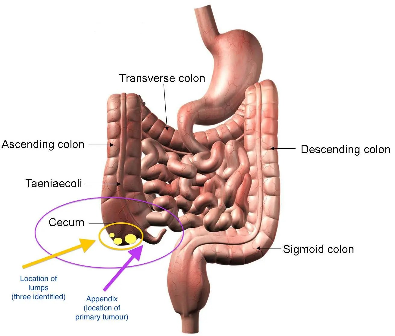 herbal treatment to cure appendicitis - ayurveda and yoga, Cephalic Vein