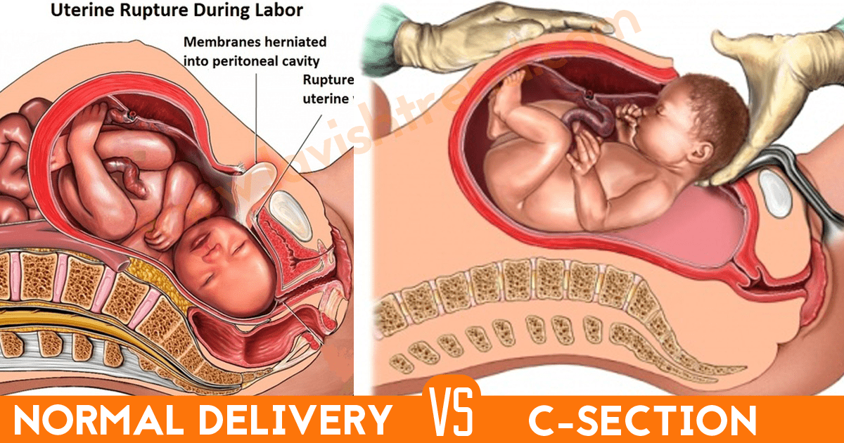 How To Overcome Caesarean Section Over Normal Delivery