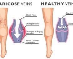 Varicose veins and healthy veins