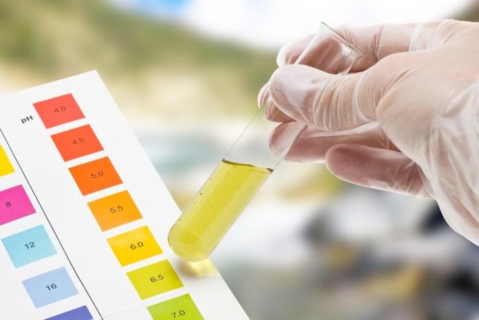 urine color