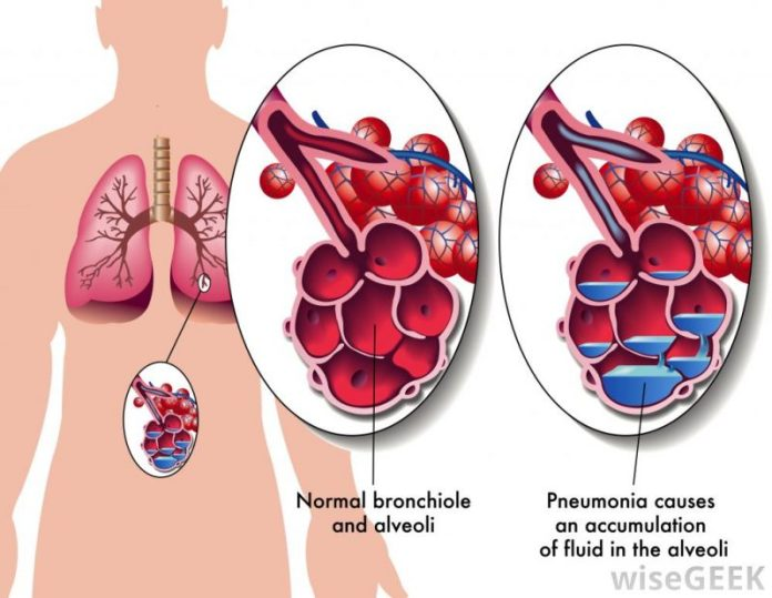 pneumonia diagram