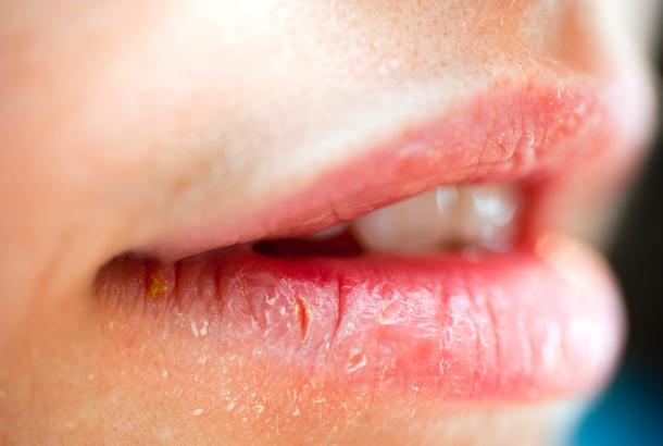 dry and cracked lips