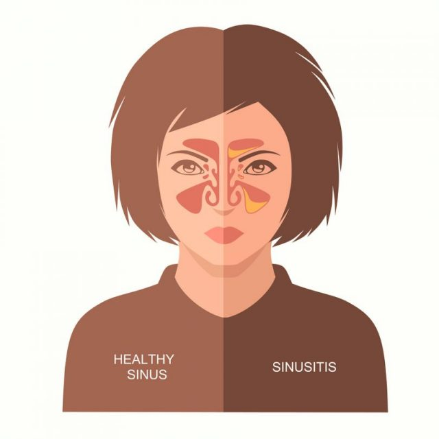 Home Remedies for Sinusitis,Remedies for Sinusitis,Sinusitis,Sinusitis Treatment