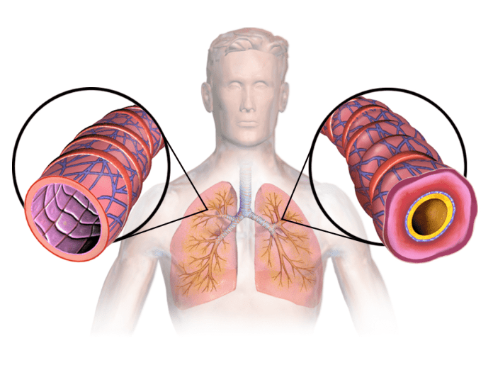 Asthma explanation Home remedies