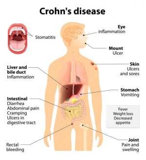 Understanding Crohn's Disease  The Best Of Health