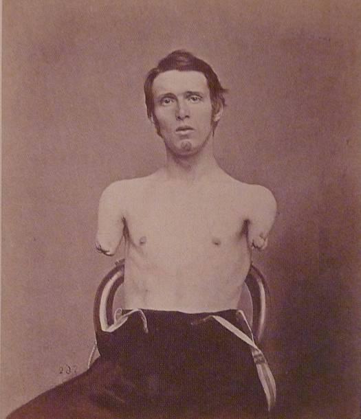 Alfred_A._Stratton civil war amputee