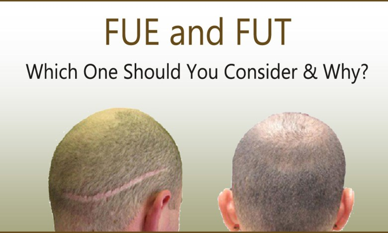 fue vs fut- FUT and FUE: Which One Should You Consider & Why?