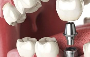 medicare dental implants