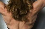 back fat problems