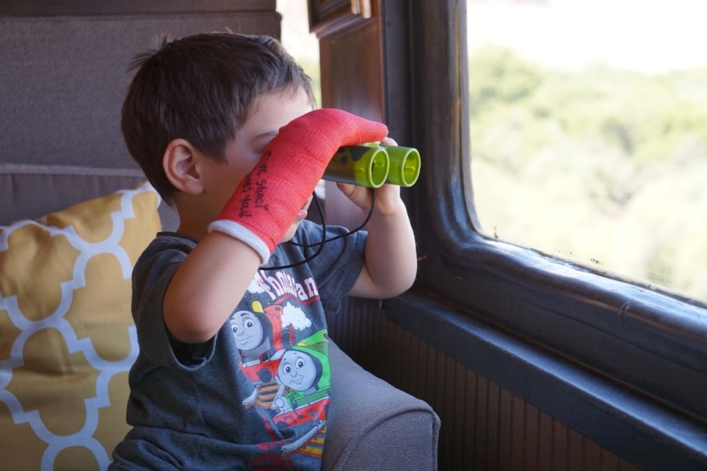 Going on vacation and your child is injured? A train ride is perfect for all family members.
