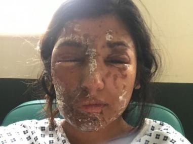 Resham Khan after the attack (GoFundMe)