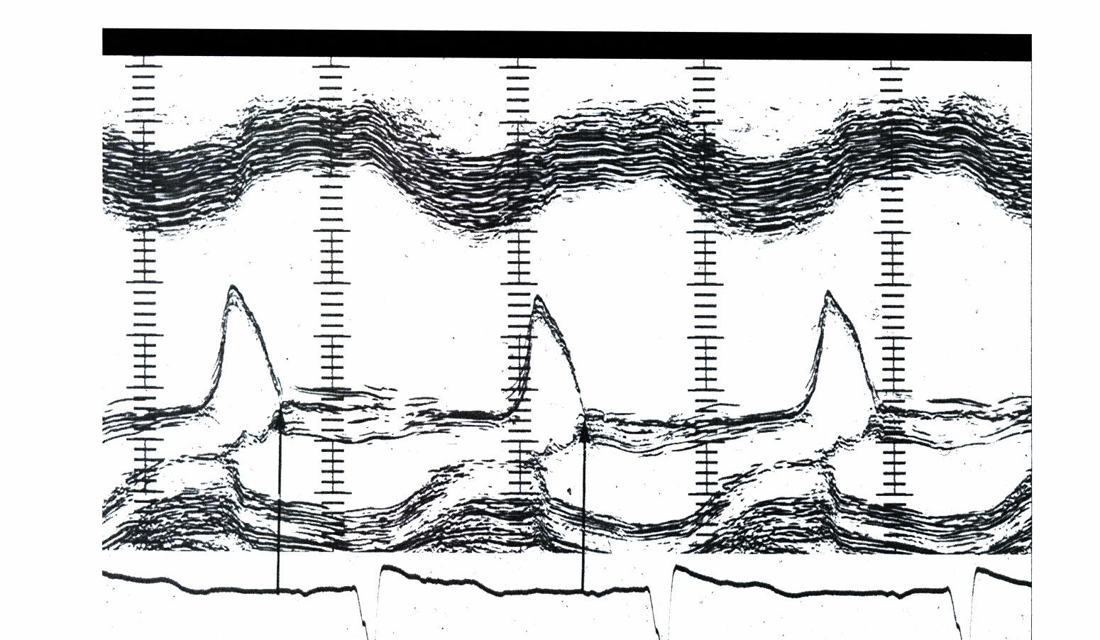 Acute Severe Aortic Regurgitation