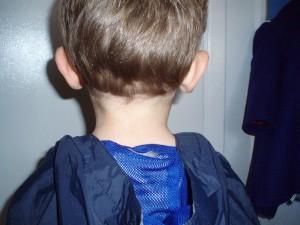 Botched Haircut-back view
