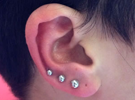 Piercing Infection