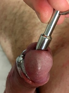 how-to-perform-urethral-dilation-with-sounds