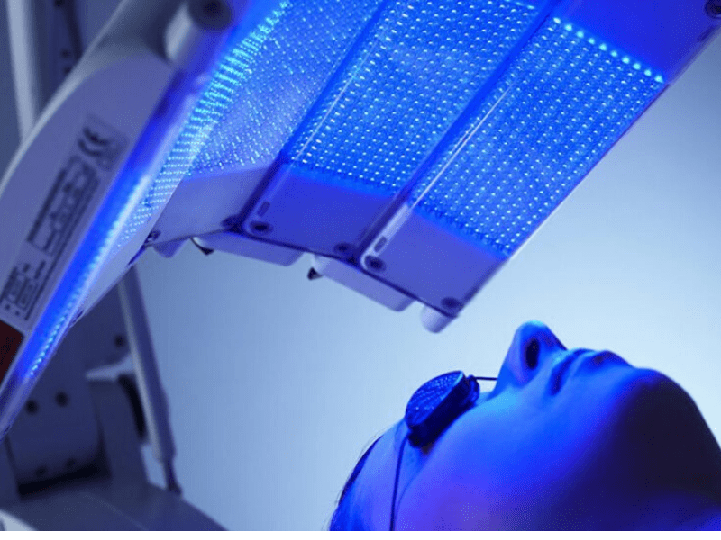 Blue Light Therapy For Pimple Reduction