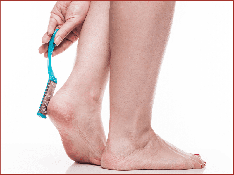 Prevention Tips For Cracked Heels