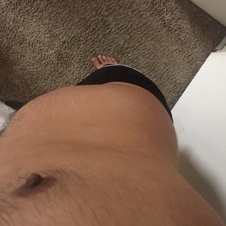 Abdominal Fat, Downward Angle View