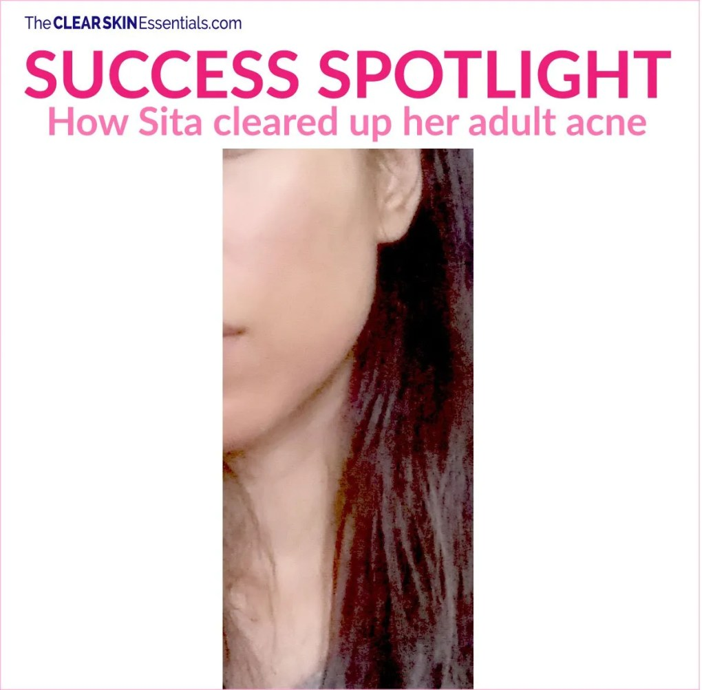 SUCCESS SPOTLIGHT - Real Women's Stories Of Clearing Up Adult Acne. Click through to read inspiring stories and strategies of how women clear up breakouts and acne at www.TheClearSkinEssentials.com