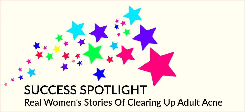 SUCCESS SPOTLIGHT - Real Women's Stories Of Clearing Up Adult Acne - www.TheCLEARSKINEssentials.com