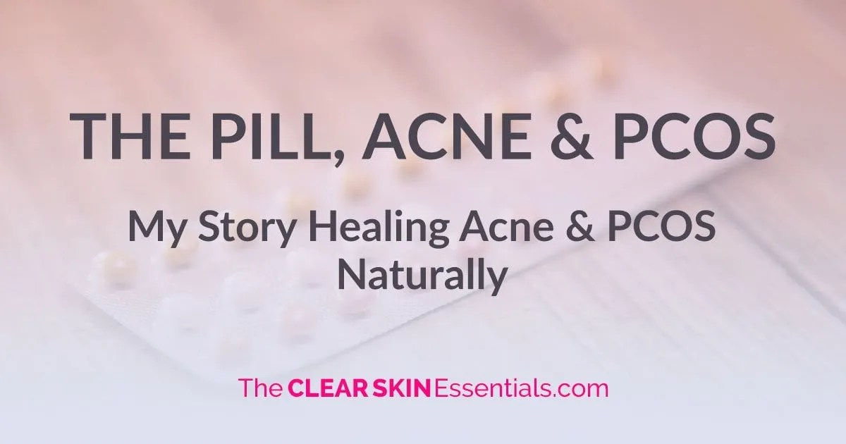 The Pill Acne And Pcos My Story The Clear Skin Essentials