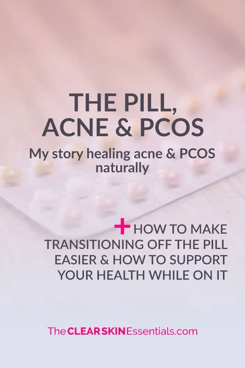 Not sure if you should go on The Pill to treat acne or PCOS? Here's my story how I found out I had PCOS when I got off The Pill, and how instead of going back on it, I wanted to try to healed myself naturally. By making massive improvements to my diet & lifestyle, I was able to balance my hormones, clear up the acne, and get rid of all the symptoms of Polycystic Ovarian Syndrome (including getting rid of the cysts covering both my ovaries and regaining my fertility naturally). It is possible to heal yourself, but you have to commit to the long term improvements to your diet & lifestyle. Click through to read my story, plus suggestions on what to change or add in to your diet & lifestyle to make transitioning off The Pill easier, or if you're currently taking birth control pills, what to do to support your health. | www.TheClearSkinEssentials.com
