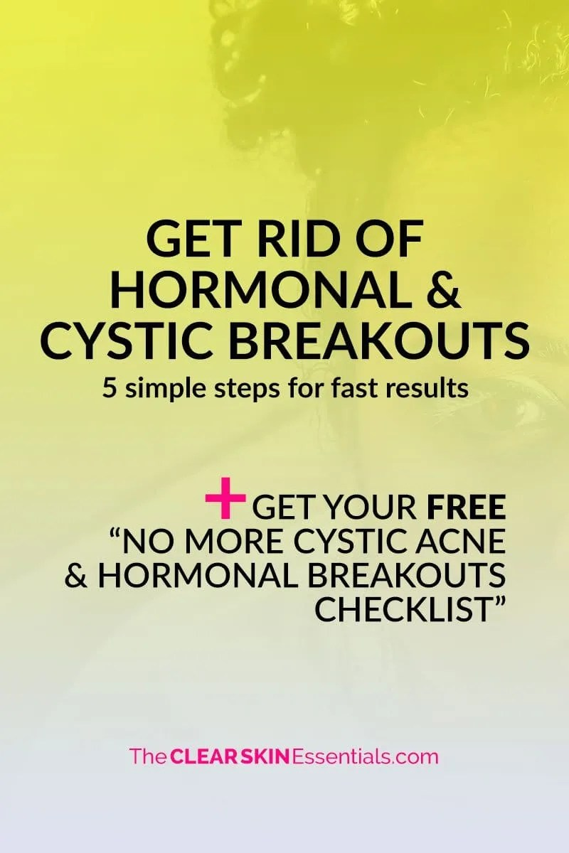"Got painful cystic acne or hormonal breakouts that won't go away? Here's 5 things you can do right now to start clearing up your skin and preventing new pimples from forming. Plus, make sure to download the FREE ""No More Cystic & Hormonal Breakouts Checklist"" for even more things to try! 