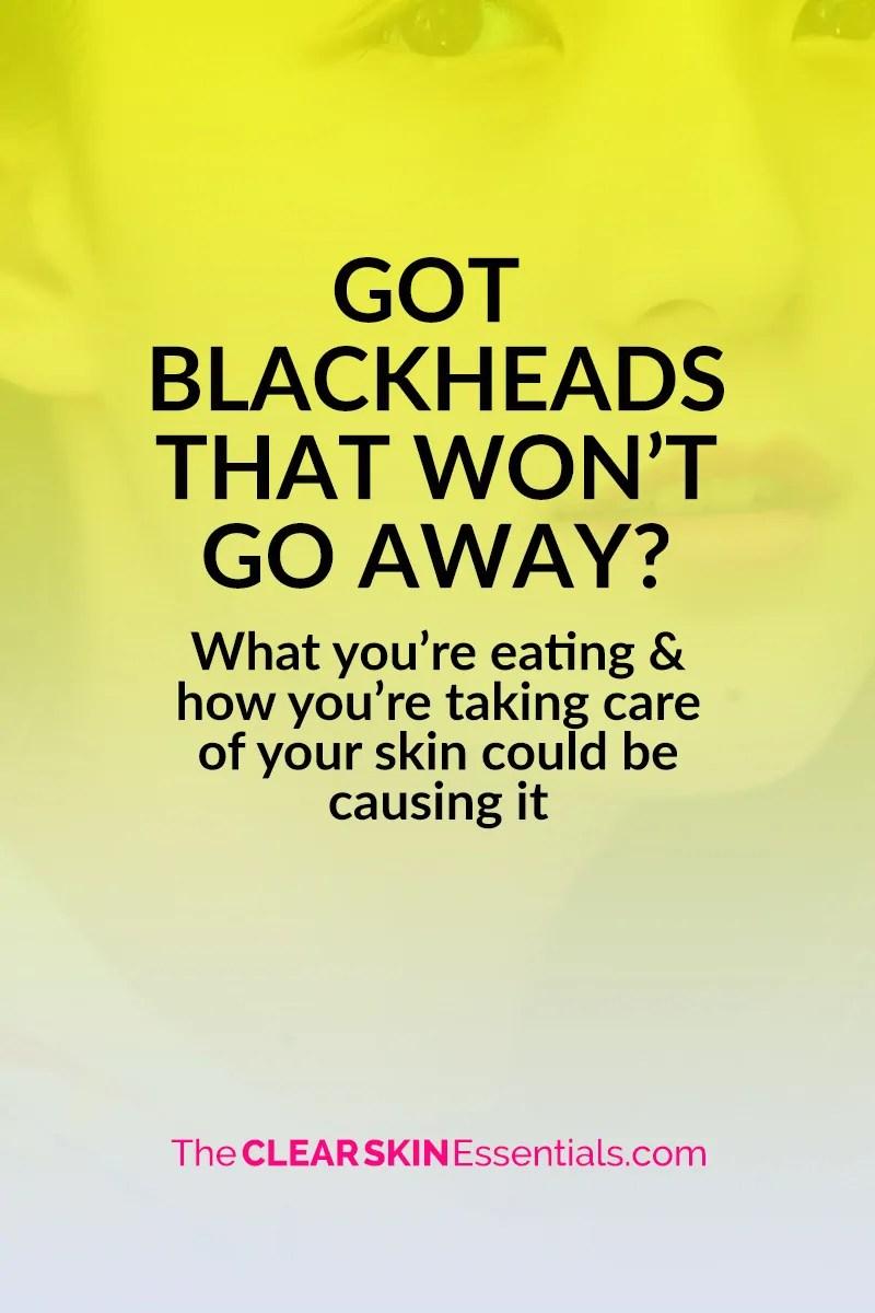 Will blackheads go away naturally