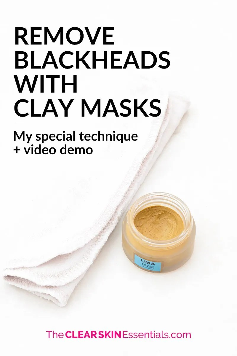 Want to get rid of blackheads? Click through to check out my special technique using clay masks to get soft, smooth, poreless skin. | www.TheClearSkinEssentials.com